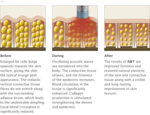 cellulite removal fat shockwave treatment