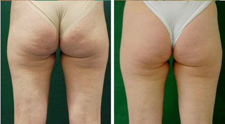 physiotherapy cellulite treatment vancouver