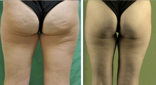 improve cellulite thigh richmond