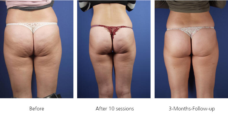 cellulite removal richmond firm