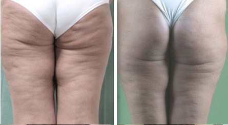 richmond cellulite loss treatment
